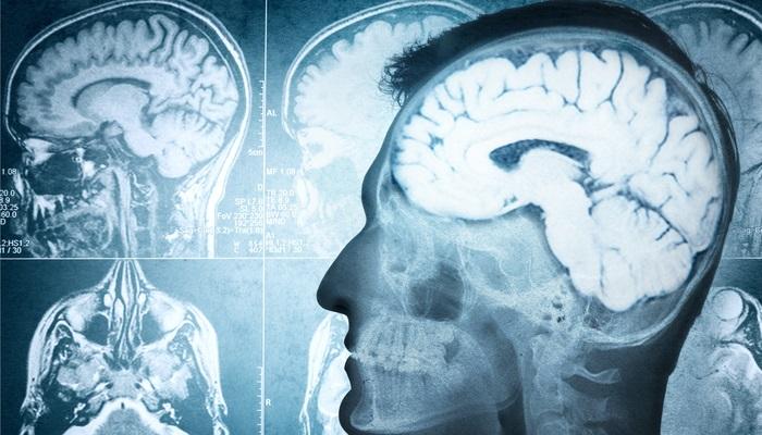 Un estudio registra el aumento de la actividad cerebral al aprender idiomas